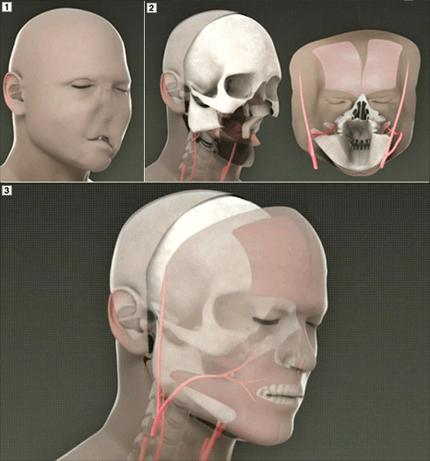Резултат с изображение за трансплантация на части от лицето.