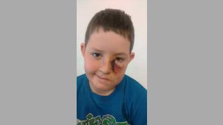 Два пъти приемат в Пирогов 8-годишно дете, нахапано от куче