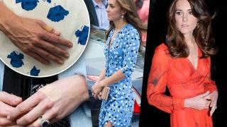 Снимки доказват, че Кейт Мидълтън страда от булимия (СНИМКИ)