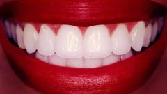 Паста за зъби ще замести зъболекаря