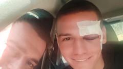 Антов със затворено око след сблъсъка с Хоган