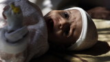 Половината деца под 5-годишна възраст в Йемен тежко недохранени