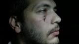 Издирват побойниците на журналистите от Нова телевизия