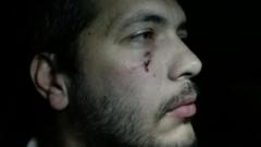 """Обвиниха охранителите побойници от АМ """"Тракия"""""""