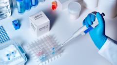 53 нови случая на коронавирус, 2 жертви, 54 излекувани