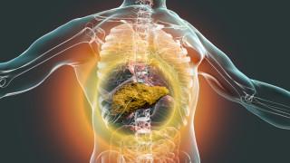 СЗО препоръчва рязко повишаване на акциза върху алкохола в Европа за борба с рака