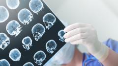 Епилепсията у нас се лекува незаконно заради липса на медикаменти