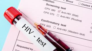 ХИВ болните намаляха в пандемията