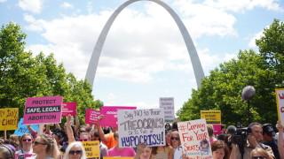 Луизиана забранява абортите след откриване на сърдечен пулс у плода