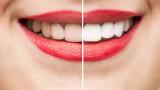 Как да имаме по-бели зъби