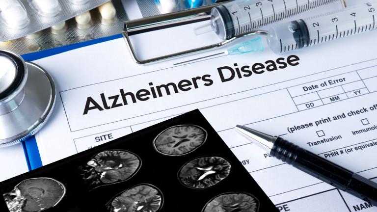 САЩ одобряват първо ново лекарство за Алцхаймер от близо 20 години