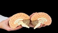 Възможен ли е животът с половин мозък