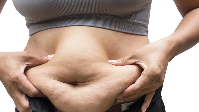 """Отхвърлиха """"парадокса на затлъстяването"""""""