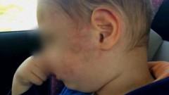 2-годишно дете със синини след детска градина