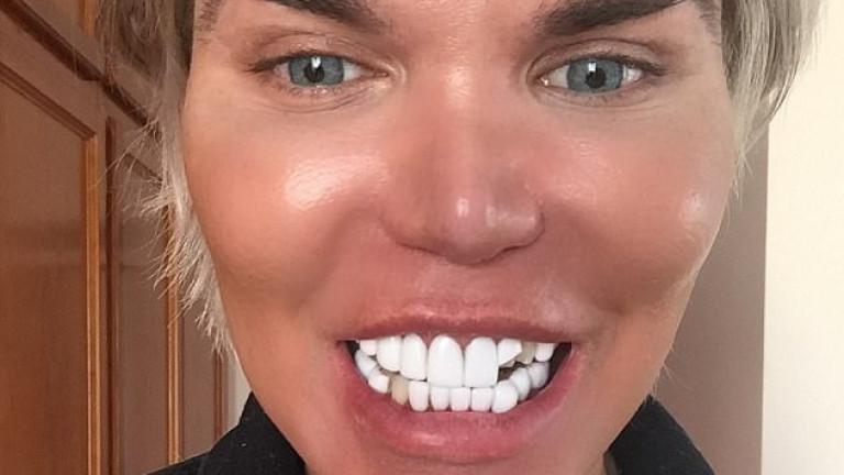 Мъжката кукла Барби - Кен остана без няколко зъба. 34-годишният