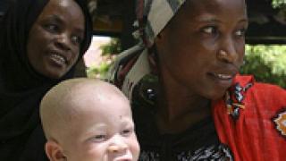 10 000 албиноси се укриват в Източна Африка