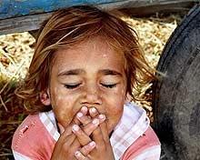 Епидемичен бум на коклюш сред децата в Нова Загора