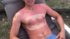 Нова мания: С татус от изгаряне (СНИМКИ)
