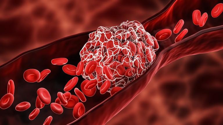 Обявиха признаците на предстояща тромбоза
