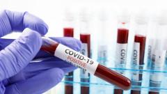 135 нови случая на коронавирус, 14 души починаха