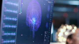 Учени тестват изкуствен интелект, който диагностицира деменция за един ден