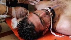 100 жертви след взрив в бежански лагер в Сирия