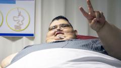 Изрязаха корема на най-дебелия мъж (СНИМКИ)