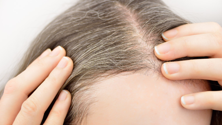 Побеляването на косата не е само въпрос на възраст и