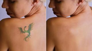 Премахване на татуировки с лазер - за и против