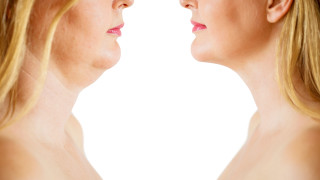 Гените ли са виновни за затлъстяването