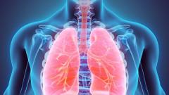 Пулмолози: Хората с астма да не спират лечението заради коронавируса